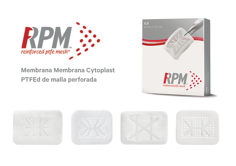 Cytoplast RPM noticia