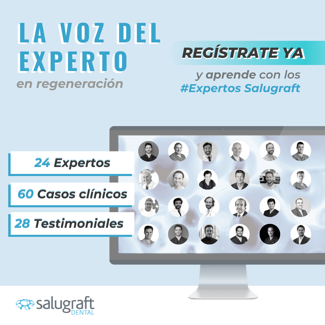 pop up_ La Voz del Experto