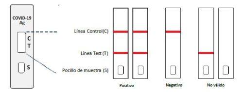 interpretación resultados test antígenos