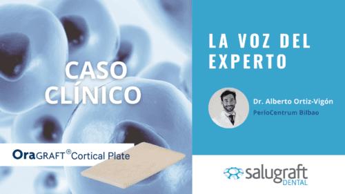 Alberto Ortiz-Vigón caso Cortical Plate