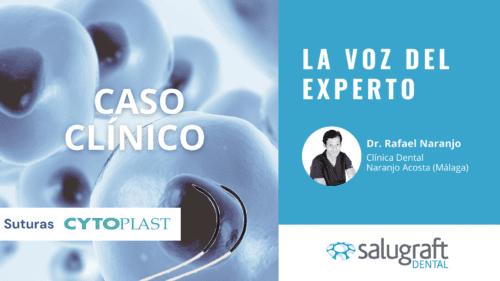 Suturas Cytoplast Rafael Naranjo