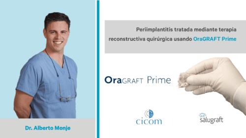 OraGRAFT Prime Alberto Monje