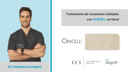 PDF Oracell Carroquino