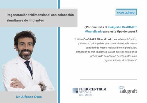 caso clinico regeneración Alfonso Oteo
