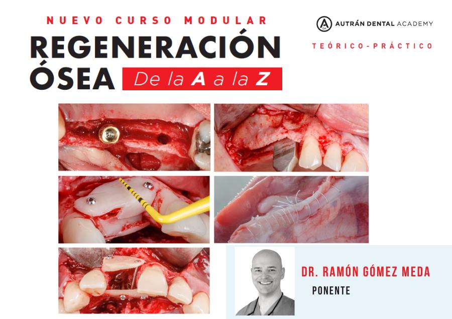 curso regeneración ósea Gómez Meda