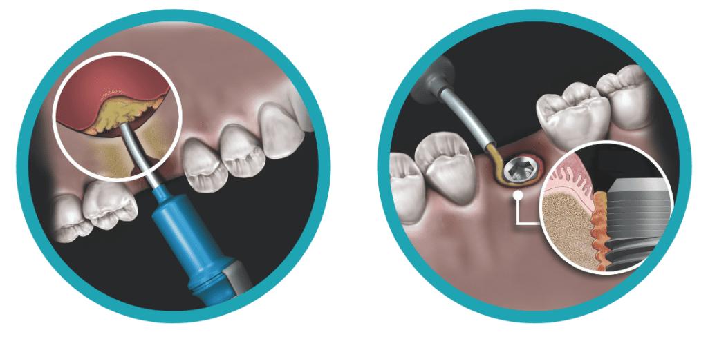 Aplicación Novabone Dental Putty