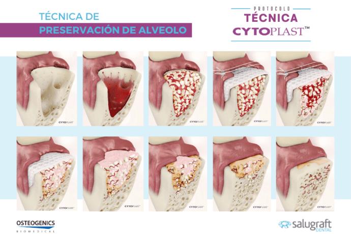 Protocolo preservación de alveolo